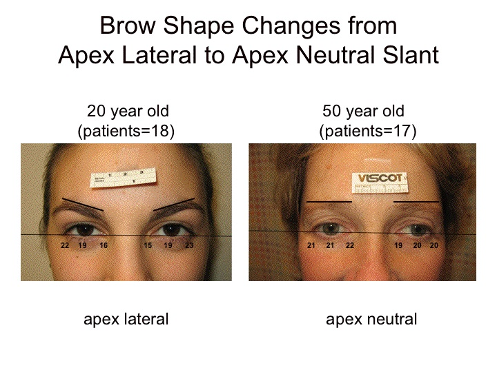 Changes In Eyebrow Position And Shape With Aging World Renowned