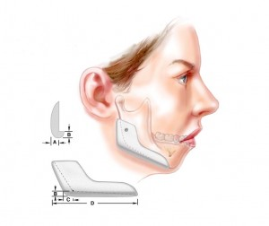 chin implant1