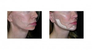 chin implant10