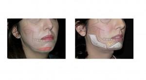 chin implant11