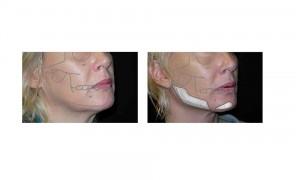 chin implant12