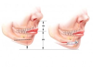 chin implant4