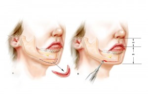 chin implant5
