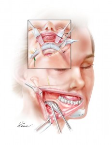 chin implant6