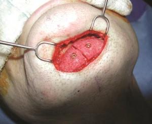 chin implant8