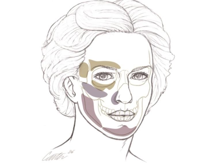 Opinion you The facial skeleton seems me