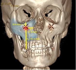 The Safe Midface Augmentation with Anatomic Landmarks for