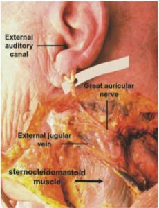 Figure 2. A cadaveric specimen demonstrating the location and course of the great auricular nerve along the sternocleidomastoid muscle.