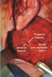 Figure 3. An intraoperative photo of the great auricular nerve with its branches along the sternocleidomastoid muscle.