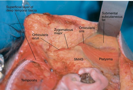 FIG. 10. Intraoperative views of lower face lift dissection diagrammatically represented in Figure 9. All lower face lift dissection is performed on the SMAS-platysma anatomic continuum. (Above) Early in the dissection, the SMAS-platysma anatomic continuum is identified by locating the lateral edge of the platysma and dissecting onto its surface medially in the neck and then superiorly in the face where it meets with the SMAS and the facial musculature. (Below) Complete lower face dissection. The SMAS, platysma, and the lateral aspects of the orbicularis oculi and orbicularis oris are exposed. In the lower left, a drain placed during the brow and midface dissection lies on, and then beneath, the superficial layer of the deep temporal fascia.