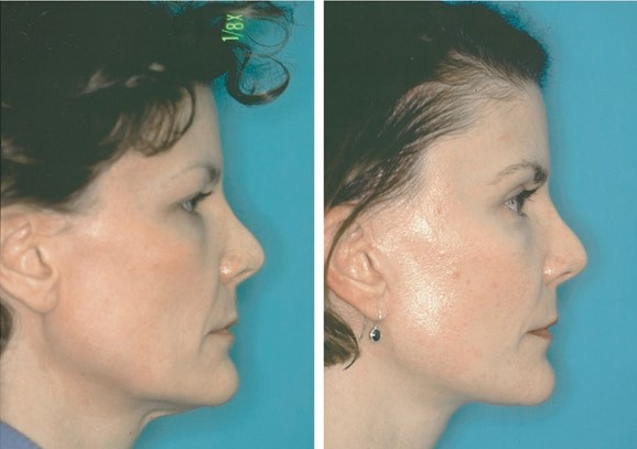 FIG. 11. A 44-year-old woman who underwent subperiosteal brow and midface lift, lower lid skin excision, transconjunctival fat removal, full-thickness skin subcutaneous tissue rhytidectomy, and upper lid blepharoplasty. (Above, left) Preoperative frontal view at age 26. (Above, center) Preoperative frontal view. (Above, right) One year postoperative frontal view. Note brow position at age 26 (above, left) is lower than the position maintained at age 44 (above, center). (Below, left) Preoperative lateral view. (Below, right) One-year postoperative lateral view.