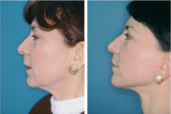 FIG. 12. A 54-year-old woman who underwent subperiosteal brow and midface lift, lower lid skin excision, transconjunctival retroseptal fat removal, upper lid blepharoplasty, and full- thickness skin and subcutaneous tissue rhytidectomy. (Above, left) Preoperative frontal view. (Above, right) Eighteen-month postoperative frontal view. Note improvement in palpebral fissure shape after midface elevation. (Below, left) Preoperative lateral view. (Below, right) Eighteen-month postoperative lateral view.