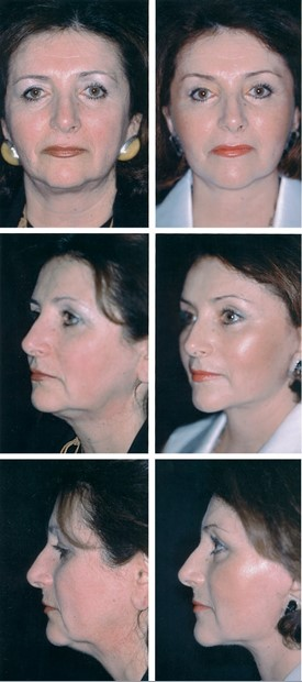 FIG. 14. A 55-year-old woman who underwent subperios- teal brow and midface lift, lower lid skin excision, and full- thickness skin and subcutaneous tissue rhytidectomy. No fat was removed from the lower lids. She had upper and lower lid blepharoplasty 3 years earlier. (Above, left) Preoperative frontal view. (Above, right) Twelve-month postoperative fron- tal view. Note improvement in palpebral fissure shape after midface elevation. (Center, left) Preoperative oblique view. (Center, right) Twelve-month postoperative oblique view. (Be- low, left) Preoperative lateral view. (Below, right) Postoperative lateral view