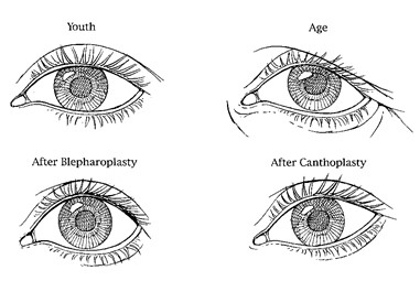 FIG. 15. Diagrammatic representation of palpebral fis- sure in youth, with aging, after blepharoplasty, and after canthoplasty. The characteristic dimensions of the youthful palpebral fissure have been defined in Figure 4. With aging, soft-tissue laxity may result in soft-tissue descent and increase in the vertical height of the palpebral fissure. Standard bleph- aroplasty may further distort the palpebral fissure by partially increasing vertical height (laterally). Canthoplasty tech- niques often result in a vertical elevation of the canthus and a narrowing laterally of the palpebral fissure.
