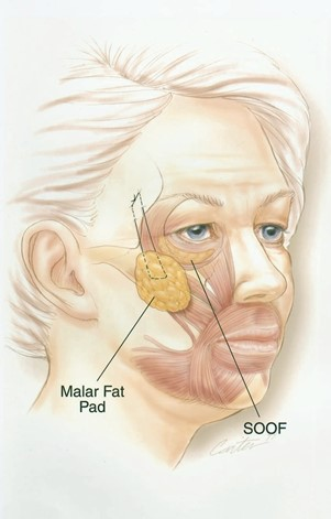 FIG. 8. Elevation of cheek soft tissues with suture fixation to the deep temporal fascia.