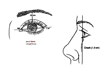 FIG. 1. Mean dimensions of a young female orbit as pre¬viously determined.1-3 Frontal view (left). The mean height of the palpebral fissure.at the.midpupil (ps to p') is 11 mm. The mean width (MC to LQ is 31 mm. The mean inclination of the lateral can thus relative to the medial canthi is +4 degrees. The mean distance between the lower pordon of the brow and the midpupil is 21 mm. Lateral view (right). The cheek projects 1.5 mm beyond the cornea in the sagittal plane.