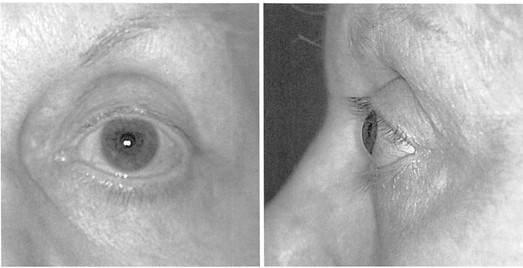 """Fig. 2. Frontal (left) and lateral (right) views of a 60-year-old woman who has undergone conventional upper and lower lid blepharoplasty as well as rhytidectomy. Note that aggressive skin, muscle, and fat removal has distorted the palpebral fissure, producing a """"round eye"""" appearance and unmasking the aging-related superomedial and inferolateral orbit aperture, changes demonstrated in the article being discussed. On lateral view, the eye appears proptotic, and the cheek lies well behind the cornea. This cosmetic surgery, intended to be rejuvenative, has produced an appearance that has no similarity to the orbit shown in Figure 1 (above) of Pessa and Yuan's article and Figure 1 of this discussion. It has made the patient look different, if not older."""