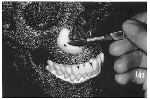 FIG. 1. Reenactment of in-place contouring. A paranasal implant has been stabilized in a skull model with a titanium screw. A scalpel is being used to trim the implant.