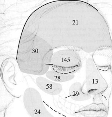 Fig. 2. Diagram showing incisions used to access the facial skeleton and the distribution of implants used in this study, according to anatomical location (nasal, 13; infraorbital rim, 28; temporal, 30. mandibular body and ramus, 24; chin, 22; paranasal. 29; malar, 58; internal orbit, 145; and frontal, 21). Blue lines, cutaneous incisions; red lines, mucosal incisions.