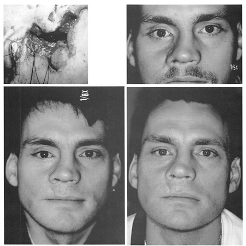 Fig. 3. A 24-year-old man who was shot in the face at short range, with open, comminuted, mandibular, palatal, malar, and orbital fractures. He was referred after reconstruction plate stabilization of his mandibular fractures. His palatal fistula was closed with local flaps and a cranial bone graft. His ocular dystopia was treated with porous polyethylene internal orbit augmentation and orbital rim augmentation. {Above, left) Appearance immediately after injury7. {Above, right) Appearance 6 months after injury. {Below, left) Appearance 2 years after secondary' operation, with implant reconstruction of the internal orbit and orbital rim. {Below, right) Appearance 10 years after secondary reconstruction.