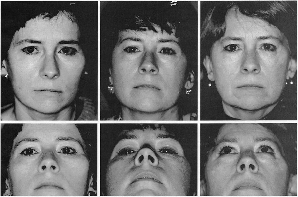 Fig. 4. A 40-year-olcl woman who was referred with a left facial mass, which a preoperative biopsy demonstrated to be a chondromyxoid fibroma of the zygoma. The patient was treated with radical removal of the involved facial skeleton and immediate reconstruction with porous polyethylene implants stabilized with plates and screws. The patient remains tumor-free and symptom-free 10 years after reconstructive operation. Frontal and worm's eye views of the patient before the operation (left), 1 year after the operation (center), and 10 years after the operation (right). Below left panel is reprinted with permission from Carr, N.J., Rosenberg, A. E., and Yaremchuk, M. J. Chondromyxoid fibroma of the zygoma. /. Craniofnc. Surg. 3: 217, 1992.