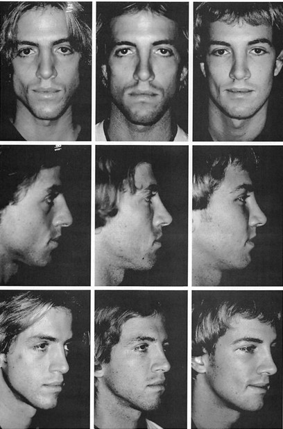 Fig. 6. A 24-year-okl male patient who requested several changes in his facial contour. Two operations were performed, 18 months apart. In the first operation, malar and infraorbital rim implants were placed and a rhinoplasty was performed, through bicoronal, intraoral, and intranasal incisions. In the second operation, paranasal and mandibular body implants were placed, the rhinoplasty was revised, and a midface lift and lateral canthopexies were performed. Frontal, lateral, and oblique views (left) before the operation, (miter) after the first operation, and (right) after the second operation. Left, frontal and lateral views and center frontal and lateral views reprinted from Yaremchuk, M. J. Infraorbital rim augmentation. Plast. Reconstr. Surg. 107: 1585, 2001.