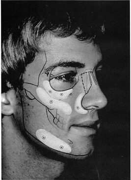 chin implant diagram