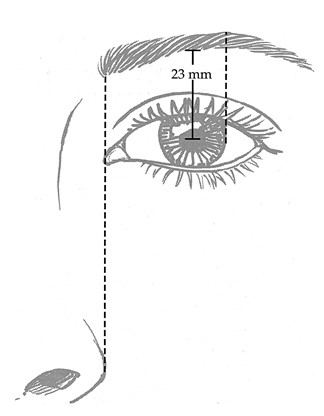 "FIG. 1. ""Ideal"" shape and position of the eyebrow (after Ellenbogen).11 The medial end of the brow ends on a vertical line drawn through the medial canthus and ala of the nose. The lateral brow terminates in an oblique line drawn through the ala of the nose and the lateral canthus. The medial and lateral ends lie at approximately the same horizontal level. The apex of the brow lies on a vertical line directly above the lateral limbus.4,6,11 This shape has been described as an apex lateral slant.6 The mean height of the brow in 100 Caucasian women, ages 19 to 25, was 23 ± 3 mm when measured from midpupil to lower edge of the brow.2"