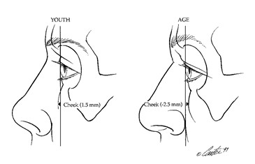 FIG. 2. (Left) In the youthful face, the cheek mass lies an average of 1.5 mm anterior to the cornea (n = 14). This is termed a positive vector relationship. (Right) In the older face, the cheek mass lies an average of 2.5 mm posterior to the cornea (n = 14).3 This is termed a negative vector rela- tionship (after Pessa et al.).3