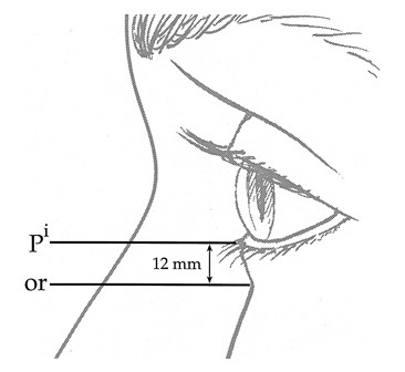 FIG. 3. The mean height of the lower lid corresponding to the distance from the lower lid (P i) margin to the orbital rim (or) was 12 ± 1.3 mm when measured in 40 women, ages 19 to 25 (after Farkas et al.).2