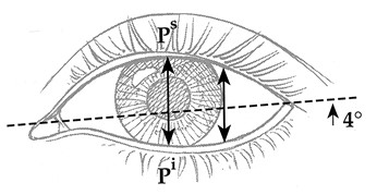 FIG. 4. Dimensions of the palpebral fissure measured in Caucasian women, ages 19 to 25. The mean height of the eye fissure measured from the upper lid (P s) to lower lid (P i) margin at the midpupil was 10.8 ± 1.2 mm (n = 200). The mean length of the eye fissure measured from medial to lateral canthus was 30.7 ± 1.2 mm (n = 200). The mean inclination of the eye fissure was 4.1 degrees ± 2.2 degrees (n = 50) (after Farkas et al.).2
