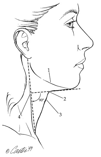 FIG. 5. Visual criteria for a youthful neck include (1) dis- tinct inferior mandibular border, (2) subhyoid depression, (3) visible thyroid cartilage bulge, and (4) submental line/ sternocleidomastoid border angle of 90 degrees11 (after El- lenbogen and Karlin).17