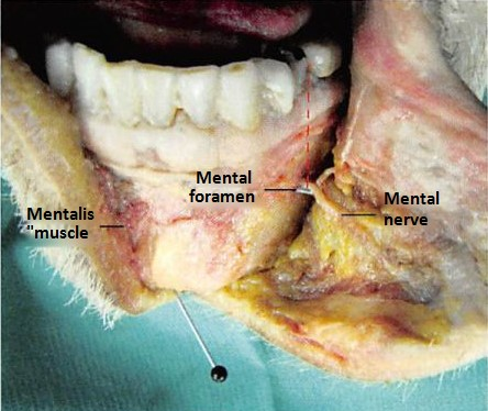 Fig. 3. Dissection of the anterior mandible with exposure of the mental nerve, mental foramen, and their relationship to the pre-molars as dental anatomic landmarks. A blackhead pin marks the inferior border of the mandible.