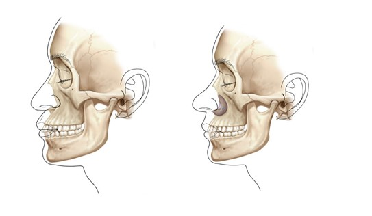 Paranasal Implants World Renowned Bespokecosmetic Plastic Surgeon