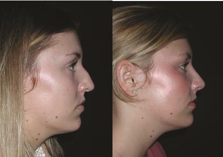 Paranasal Implants World Renowned Bespoke Cosmetic