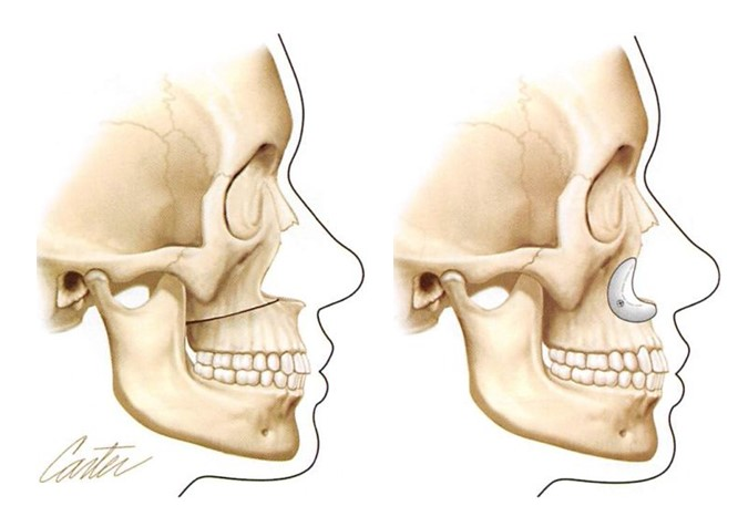 Alloplastic Augmentation Of The Facial Skeleton An Occasional