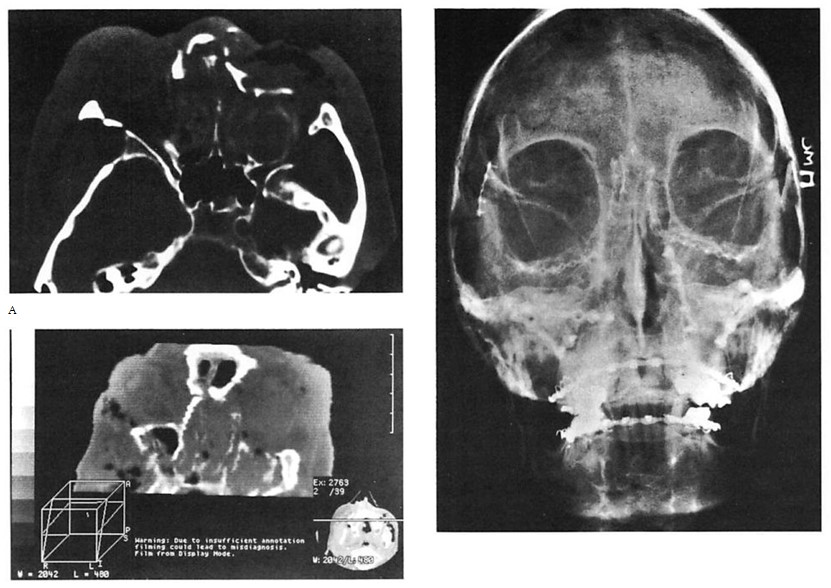 Microfixation of Acute Orbital Fractures – World Renowned Bespoke ...