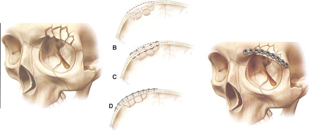 orbital deformity after craniofacial fracture repair