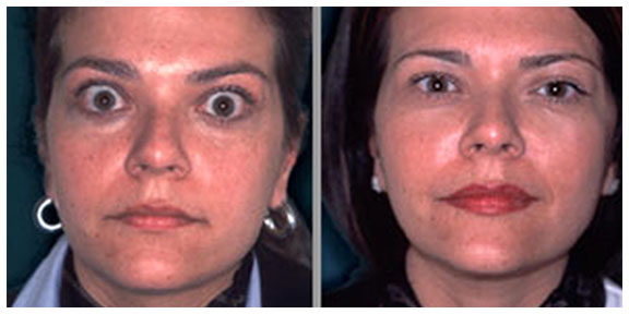 Boston facial plastic surgeon