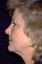 Facelift - Before (Patient 1 Side)