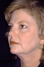 Facelift - Before (Patient 1 Three-Quarter view)