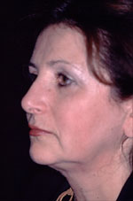 Facelift - Before (Patient 2 Side)
