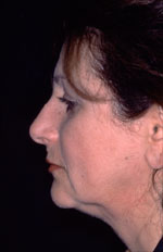 Facelift - Before (Patient 2 Three-Quarter view)