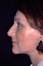 Facelift - After (Patient 2 Three-Quarter view)