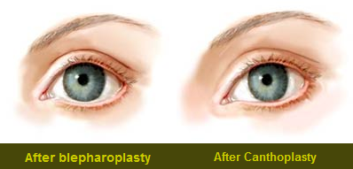 Lateral Canthopexy | Dr. Yaremchuk | Best plastic surgeon Boston