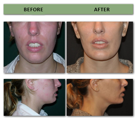 chin-augmentation-and-posterior-mandible-augmentation