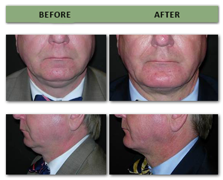 chin-augmentation-and-sub-mental-lipectomy