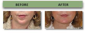 chin-augmentation-and-rhinoplasty