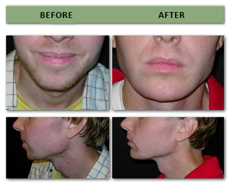 chin-shortening,and-sagittal-augmentation