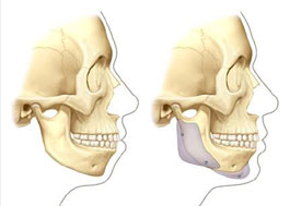 Mandibular angle and anatomic chin implant augmentation
